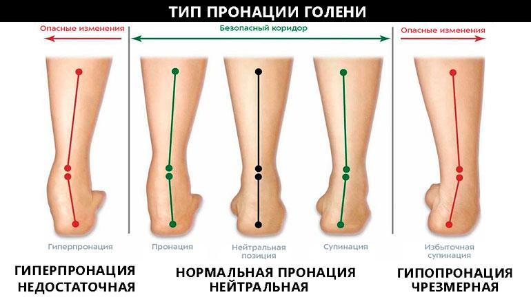 Пронация для выбора кроссовок